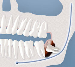 wisdom-tooth-cyst-formation