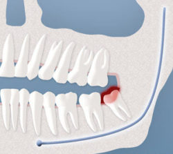 wisdom-tooth-infection