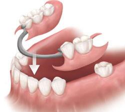 partial-denture